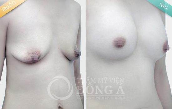 Kết quả phẫu thuật nâng ngực chảy xệ