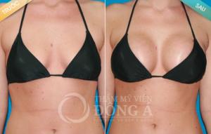 Hình ảnh trước sau thẩm mỹ ngực tại TMV Đông Á
