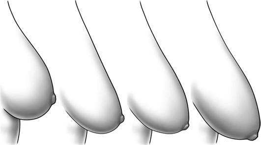 4 lưu ý khi thẩm mỹ nâng ngực 1