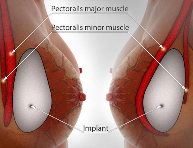 Nâng ngực nội soi dưới góc nhìn của chuyên gia 2