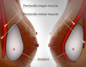 Vì sao chuyên gia khuyên dùng túi ngực Microthane?