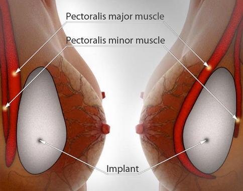 Vì sao bạn nên chọn nâng ngực với túi ngực Microthane?