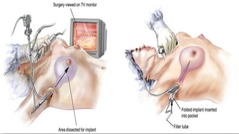 Kết quả hình ảnh cho hình ảnh nâng ngực nội soi đường nách