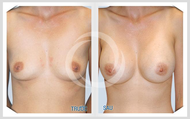 Kết quả nâng ngực
