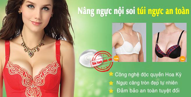Nâng ngực nội soi, túi ngực an toàn
