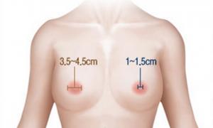 Phẫu thuật thu nhỏ núm vú đẹp thon gọn hài hòa với bầu ngực