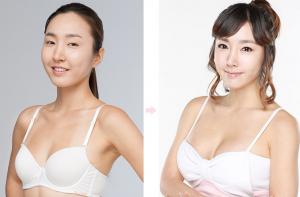 Phẫu thuật ngực – Từ A đến Z những thông tin chính xác nhất