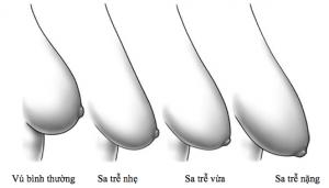 Nguyên nhân khiến ngực chảy xệ và cách khắc phục hiệu quả