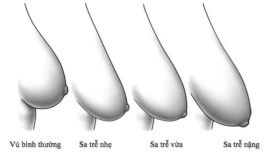 Hỏi - đáp: Khắc phục ngực chảy xệ sau sinh bằng cách nào?