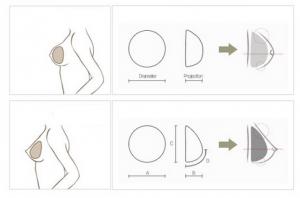Nâng ngực túi giọt nước – An toàn – Vòng 1 đẹp tự nhiên như THẬT