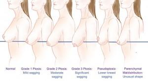 Ngực chảy xệ làm sao để khắc phục hiệu quả?