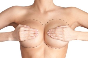Phương pháp phẫu thuật nâng vú an toàn – Ngực đẹp hoàn hảo