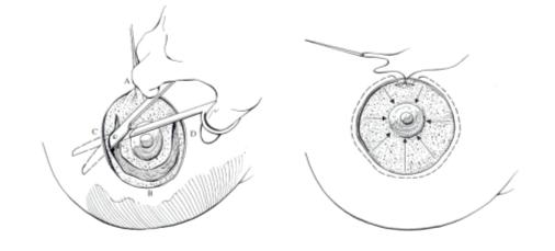Giải phẫu thẩm mỹ nâng ngực chảy xệ