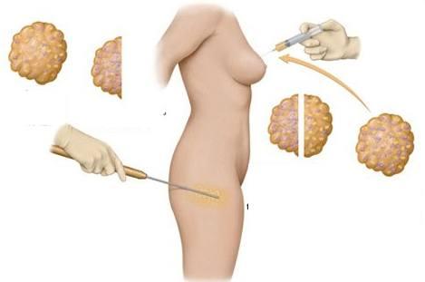 Giải phẫu thẩm mỹ nâng ngực bằng mỡ tự thân