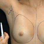 Phẫu thuật nâng ngực nội soi có nguy hiểm không? Chia sẻ từ chuyên gia