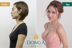 Hình ảnh trước sau thẩm mỹ nâng ngực tại TMV Đông Á