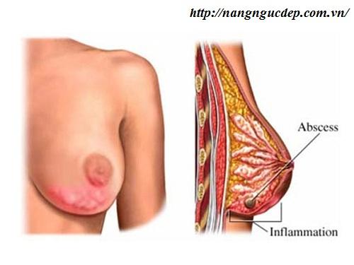 miếng dán nâng ngực dùng 1 lần