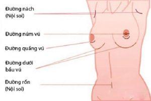 Nên nâng ngực qua đường nào là tốt nhất, an toàn nhất?