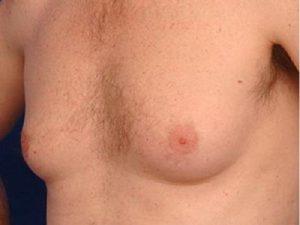 Vú phì đại ở nam giới, biểu hiện và giải pháp khắc phục