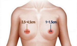 Thu nhỏ quầng vú là gì có an toàn không?