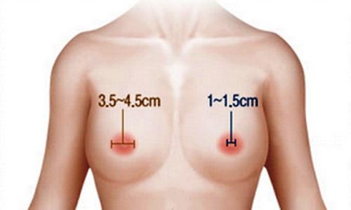 Thu nhỏ quầng vú giúp vòng một trở nên quyến rũ hơn