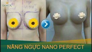 Túi nâng ngực Nano Perfect là gì?