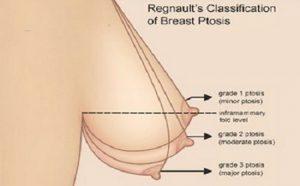 Nâng ngực chảy xệ bằng chỉ như thế nào?