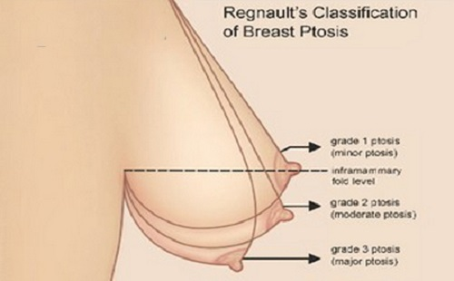 Nâng ngực chảy xệ bằng chỉ giúp ngực căng đầy