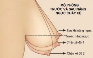 Nâng ngực sa trễ an toàn tại Thẩm mỹ viện Đông Á