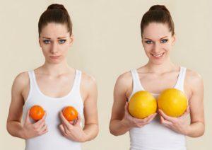 Phẫu thuật nâng ngực đẹp – 90p thay đổi cuộc đời